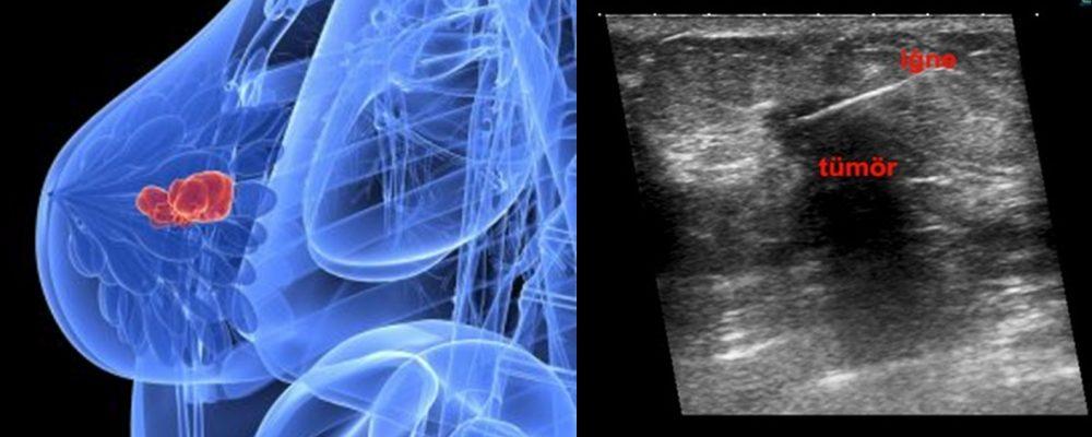 biyopsi iğne tümör trucut