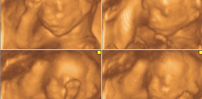 4 boyutlu ultrason hsg rahim filmi 1001