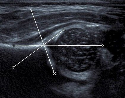kalça ultrasonu