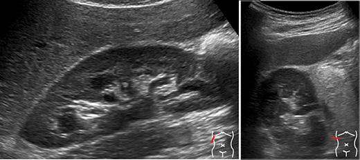 renal ultrason ve doppler hakkında bilgi
