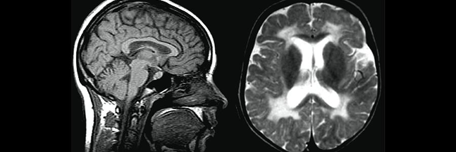 mr-ultrason-arasindaki-farklar-nelerdir